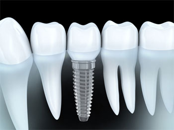 dental implants, cedar rapids dentist