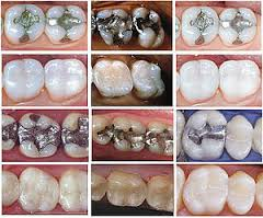tooth restoration marion